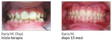 Un esempio della terapia condotta dal Dott. Adriano Montorsi