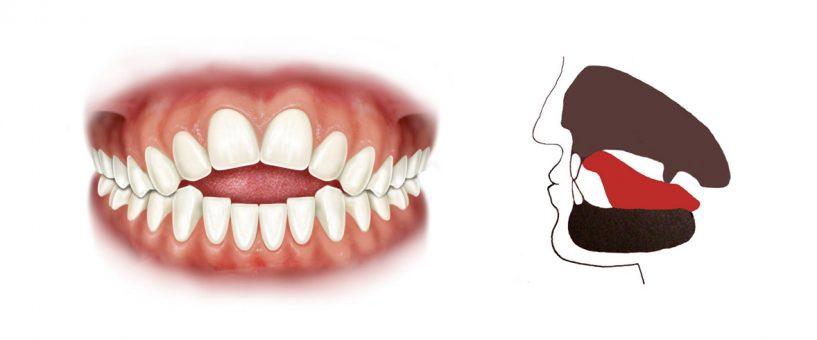 Terapia miofunzionale in ortodonzia metodo montorsi armonizzatori cranio occlusali montorsi - Finestra tra i denti ...